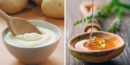 Trị mụn đầu đen hiệu quả với mật ong và sữa chua