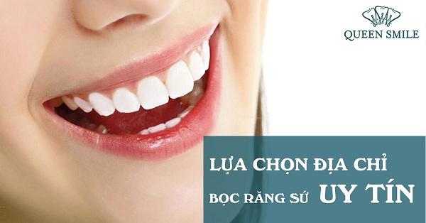 Địa chỉ bọc răng sứ cần phải đáp ứng tiêu chí ra sao ?